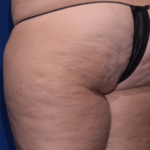 resonic for cellulite