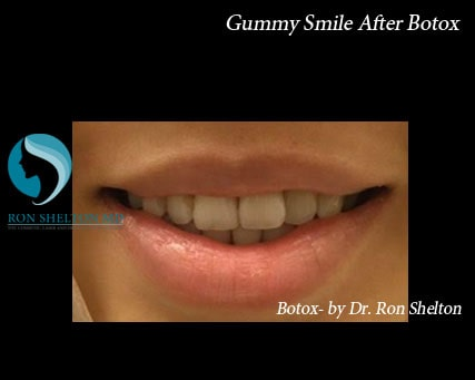 Gummy smile After Botox