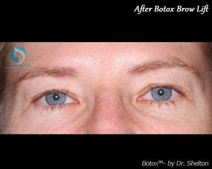 After Botox Brow Lift NYC