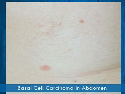 Basal Cell Carcinomas - abdomen