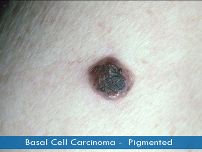 Basal Cell Carcinomas