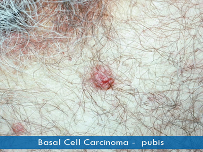 Basal Cell Carcinomas - pubic