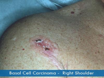 Basal Cell Carcinomas - right shoulder
