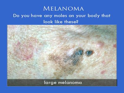 Melanoma Surgery in NYC