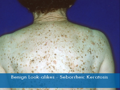 Seborrheic Keratosis Removal And Treatment In Nyc Dr Ron